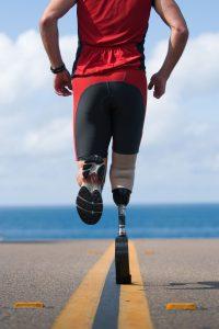 Custom Prosthetic Devices