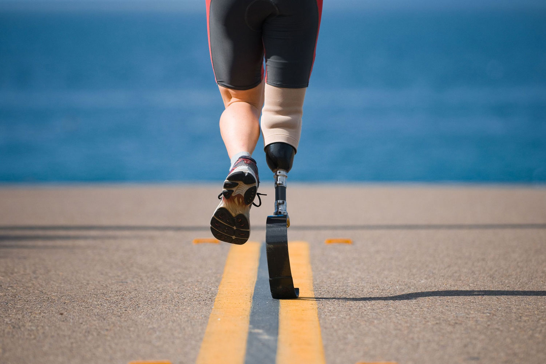 prosthetic limbs technology