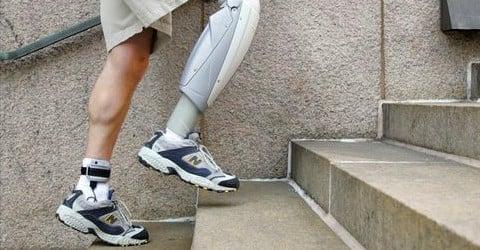 orthotics prosthetics