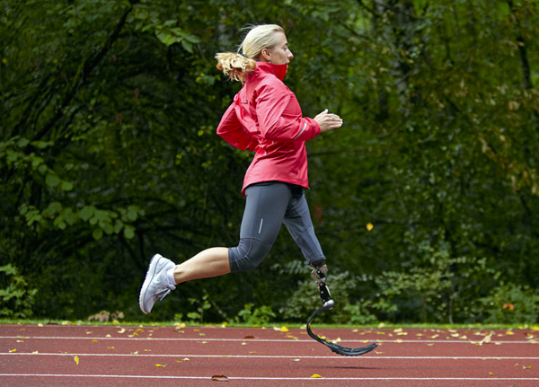 Artificial Limbs Alabama