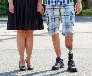 custom prosthesis