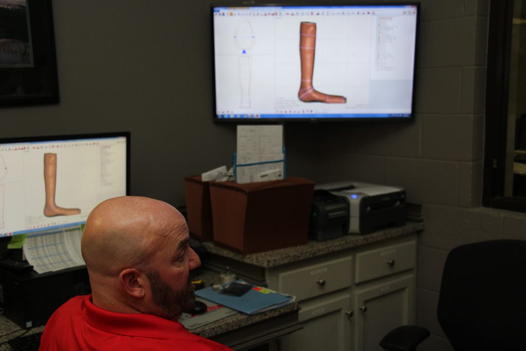 prostheses and orthoses