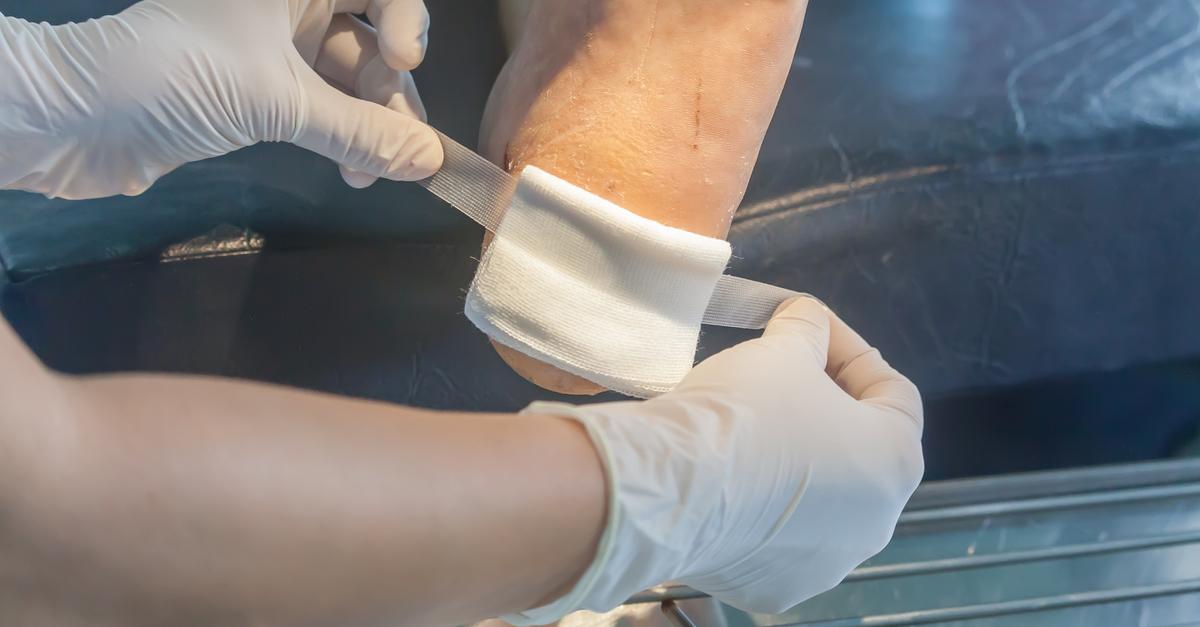diabetic foot ulcers