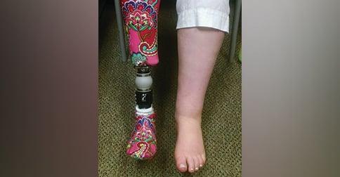 help kids understand limb loss