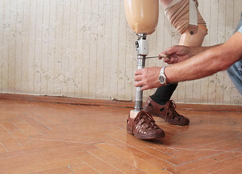 prosthetic leg information
