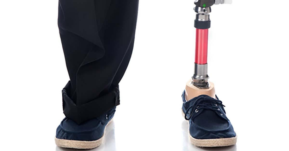 prosthetic limbs facts