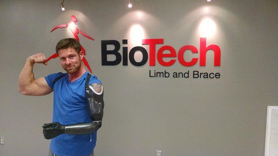 Prosthetic arm birmingham al