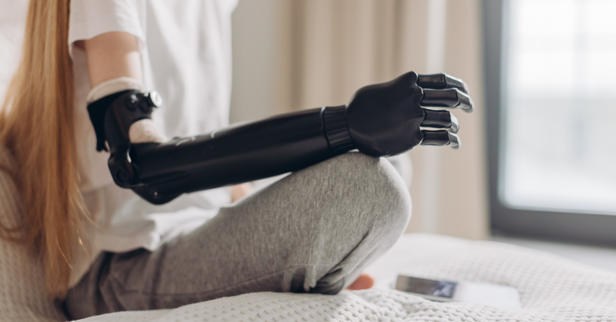 Limb Loss Rehabilitation: What to Expect