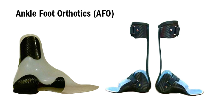 Using and Caring For an Ankle Foot Orthotic
