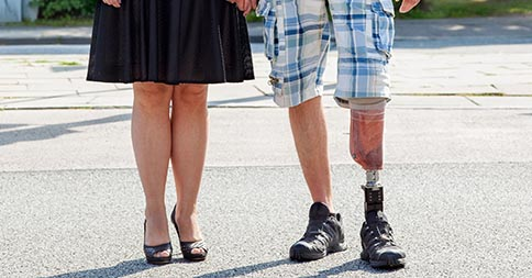 Loving Your Prosthesis