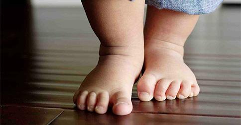 4 Common Pediatric Orthopedic Conditions
