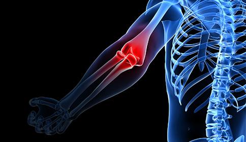 The Biology Behind Phantom Limb Pain