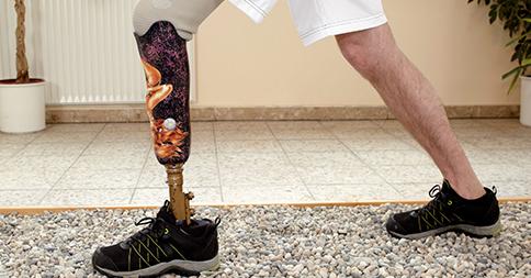 lower-extremity limb loss